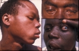 Lepromatous leprosy: B. infected red eyes.