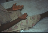 Leprosy: Claw hand deformity. Shortening of fingers due to absorption of phalanges.
