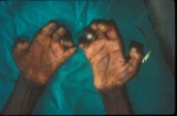 Leprosy: Shortening of fingers due to absorption of phalanges.