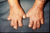 Leprosy: Shortening of fingers due to absorption of the phalanges.